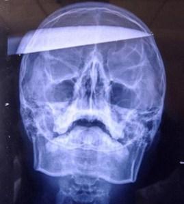 Hasil X-ray Xiao Wei/foto dailymail