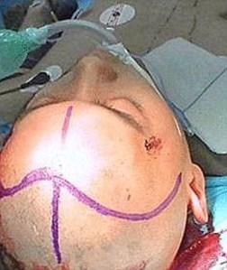 Kondisi Wei  setelah operasi mengeluarkan pisau  dari kepalanya selesai/dailymail