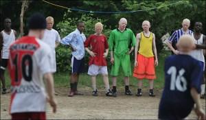 Kisah Pembantaian Orang-orang Albino: Mereka Dipotong-potong Seperti Ayam