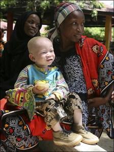 bocah albino bersama ibunya