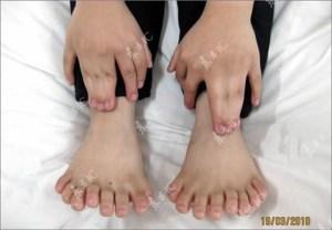 Bocah 6 tahun dengan 31 jari, pecahkan rekor manusia jari terbanyak. Rekor sebelumnya 25 jari