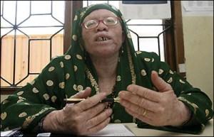 zihada msembo-sekjen the tanzanian albino society